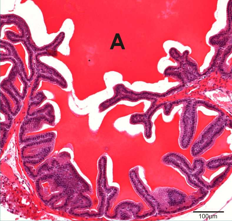 section of seminal vesicles showing seminal fluid