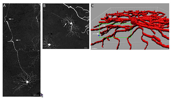 images of retinal degeneration