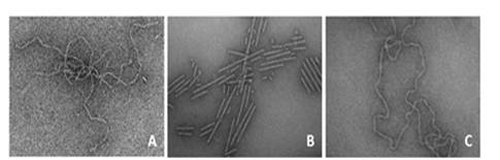 Transmission electron micrographs of amyloid fibrils
