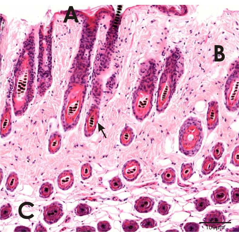 skin section showing epidermis, dermis, adipose tissue and hair follicle