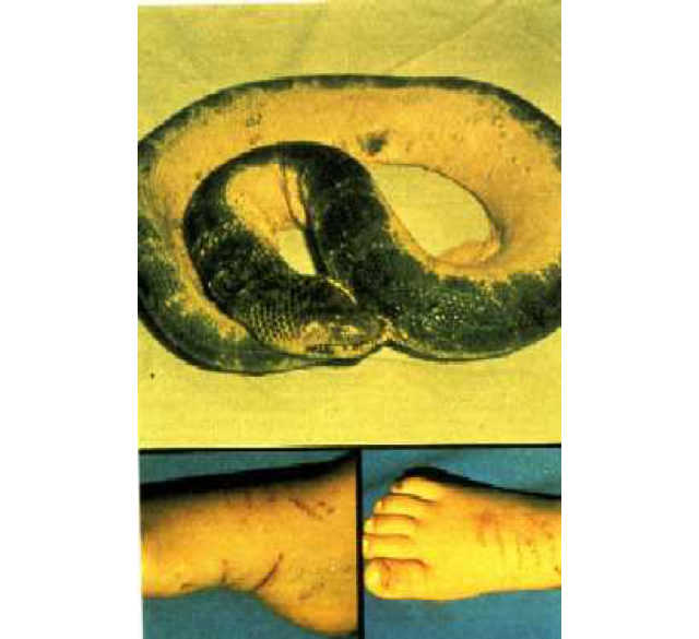 photo of wounds inflicted on the victim and the snake