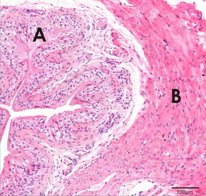 section of urinary bladder showing transitional epithelium and detrusor muscle