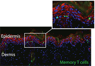 Virus-specific memory T cells (shown in green) persist in the epidermal layer of the skin (indicated by red keratin staining). Skin was analysed two weeks after skin infection with herpes simplex virus-1 (HSV-1).