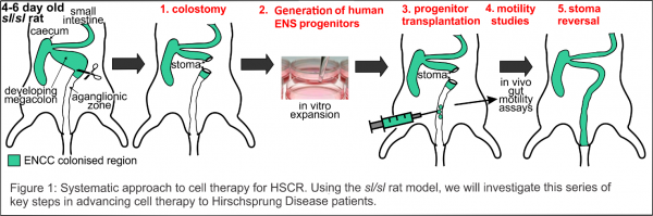 A stem cell therapy for Hirschsprung Disease