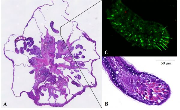 Transverse sections of a sea anemone stained with H&E and using fluorescence in-situ hybridisation