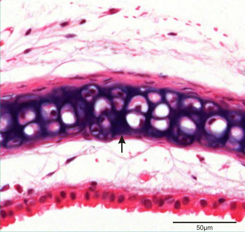trachea section showing hyaline cartilage