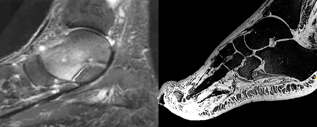 Two medical images of the foot and ankle: one from the late 1990s (left) and one from the current day (right), showing much more detail