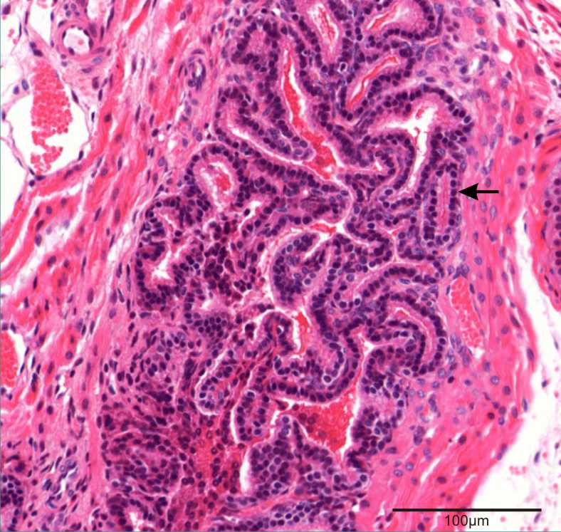 prostate section showing glandular component