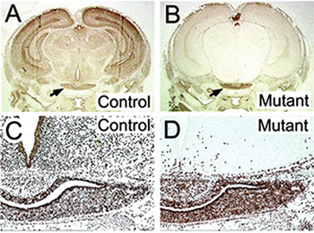 histology of hypothalamus showing differences between normal and mutant mice