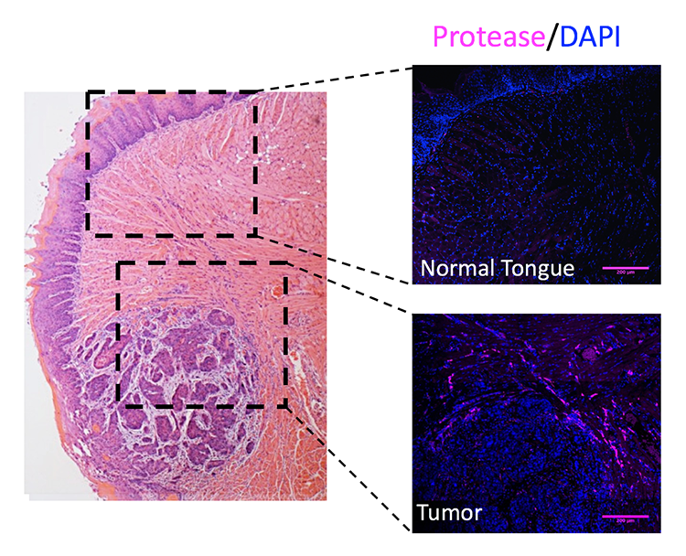 histology section showing elevated protease in murine oral squamous cell carcinoma